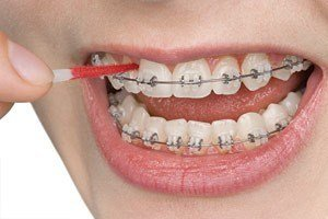 interdental-toothbrush-1